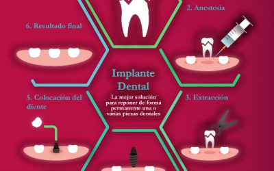 Infografía Implantes Dentales