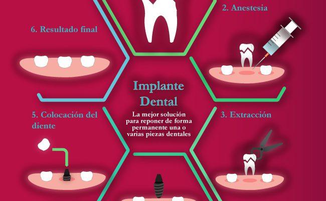 Infografía Implantes Dentales