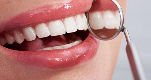 blanqueamiento-dental-madrid